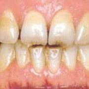 Tandarts Zevenaar - verkleurde tanden